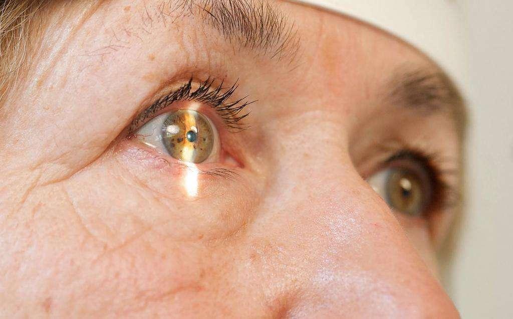 глаукома на обоих глаз